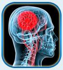 Инфаркт головного мозга, лечение