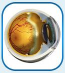 лечение ретинопатии