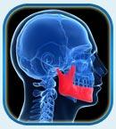 исправление деффектов челюсти